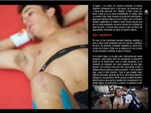 lesiones 5